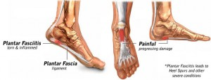 Irritation to the plantar fascia under the arch of the foot