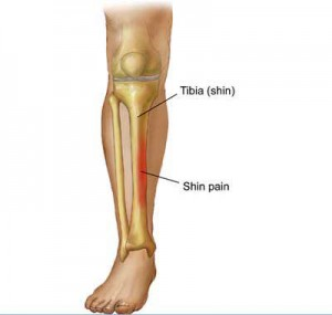Medial tibial stress syndrome.